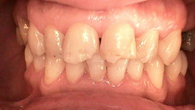 composite fillings before