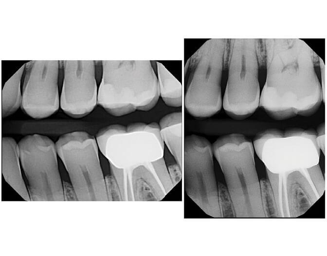 Digital X Rays In Ottawa Upper Hunt Club Dental Centre